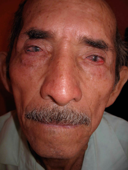 A Guatemalan man with severe pterygia.
